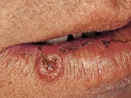Weißer Hautkrebs: sogenanntes Plattenepithelkarzinom am Mund