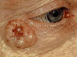Ein Basalzellkarzinom neben dem Auge