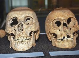 Modernste Analyseverfahren von Skeletten und Knochen bringen neue Erkenntnisse über die Lebensweisen unserer Vorfahren an den Tag.